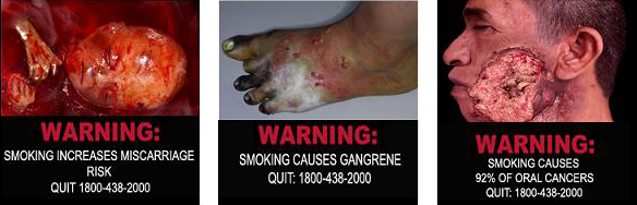 Smoke causes gangrene